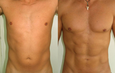 Before and After Photo: Ab Etching #2