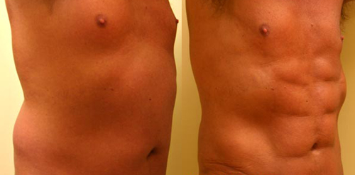 Before and After Photo: Ab Etching #3