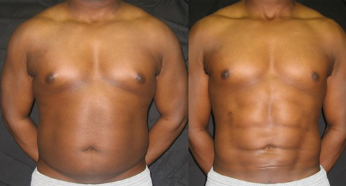 Before and After Photo: Ab Etching #4
