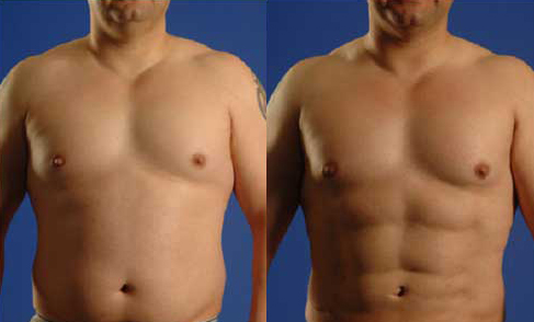 Before and After Photo: Jessie Sirianni gets abdominal liposuction with great results.