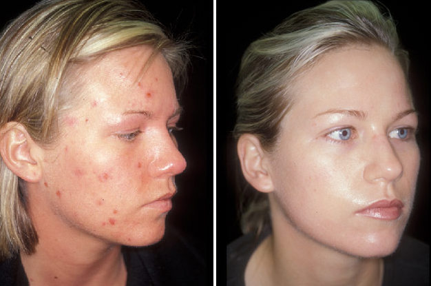 Before and After Photo: Malinda Shoopman has acne treatment with success.