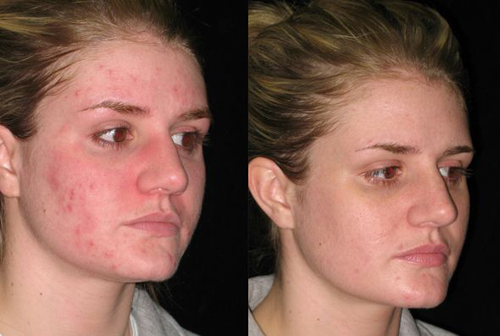 Before and After Photo: Saundra Bozek gets Isolaz to treat her acne. The treatment was a success. The after photo was taken a month later.