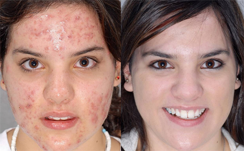Before and After Photo: Jessie Strack decides to get acne treatment.