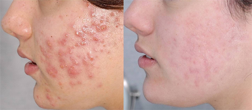 Before and After Photo: Tanisha Mangino gets acne treatment with success.