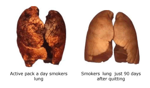 Before and After Quitting Smoking