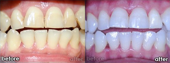 Before and After Photo: Teeth Whitening #1