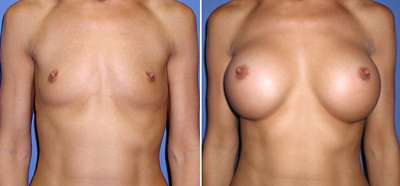 Before and After Photo: Margery Huff Has a breast augmentation practically giving her breasts form her flat chest.