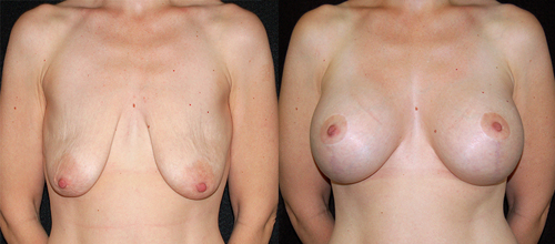 Before and After Photo: Julianne Palencia has her breast implants inserted as bell as having a breast lift and areola reduction.