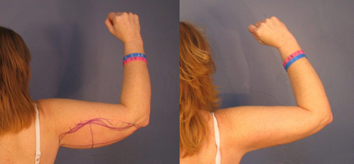 Before and After Photo: Brachioplasty #3