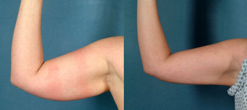 Before and After Photo: Brachioplasty #4