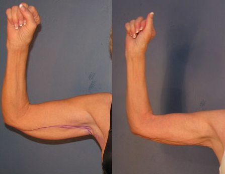 Before and After Photo: Brachioplasty #5