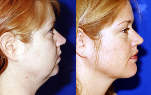 Before and After Photo: Lilia Goers gets a chin augmentation making her chin look more prominent.