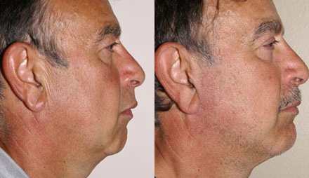 Before and After Photo: Avis Longstreet got chin implants. The operation was a total success and now he is happy with his new chin.