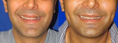 Before and After: Dimple Implants #2