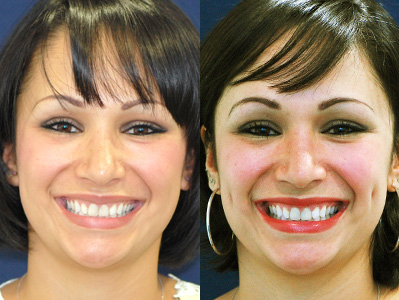 Before and After Photo: Dimple Implants #3