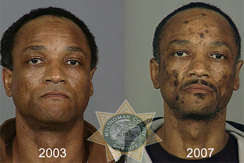 Before and After Drugs Photo: After photo of a man being on Meth for 5 years.