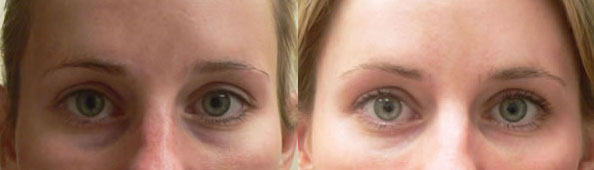 Before and After Photo: Eye Bags #3