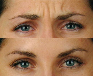 Before and After Photo: Frown Lines #3