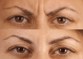 Before and After Photo: Frown Lines #5