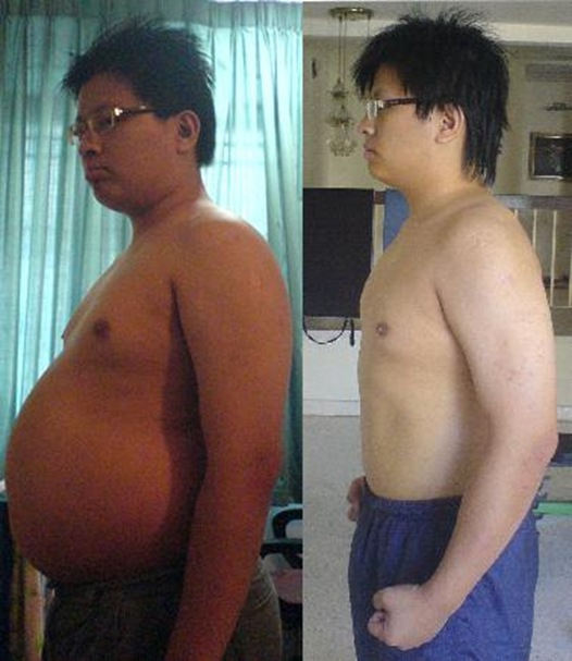 Before and After Photo: Khai Breitenstein has gastric bypass surgery and loses a serious amount of weight in 6 months.