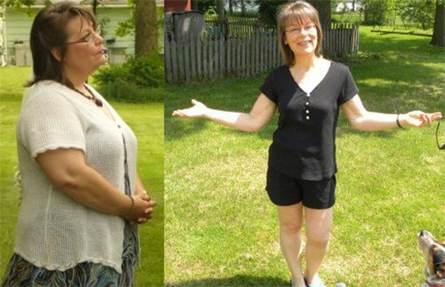 Before and After Photo: Tia Allbright lost a massive amount of weight a year after her gastric bypass was installed.