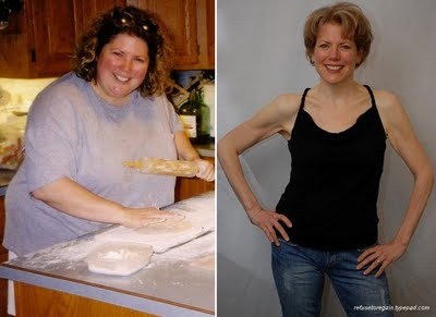 Before and After Photo: Katy Carolan a year and a half following gastric bypass surgery.