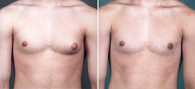 Before and After Photo: Darren Ipock has gynecomastia done with wonderful results.