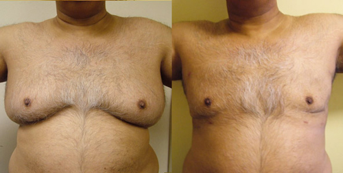 Before and After Photo: Jamie Gutter has gynecomastia performed on his huge male breasts almost completely correcting the problem.
