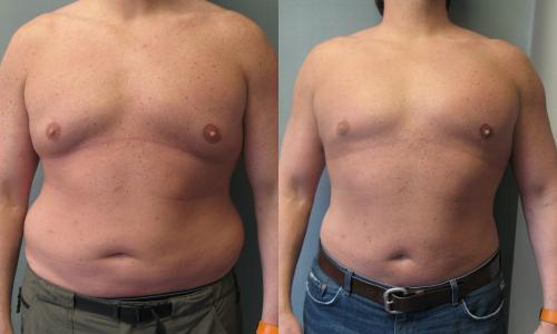 Before and After Photo: Fernando Rodiguez has male breast reduction (gynecomastia) fixing his male breasts making him look more masculine.