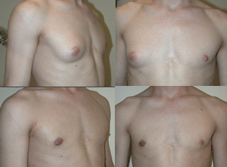 Before and After Photo: Tyrone Leeson has male breast reduction surgery known as gynecomastia. Effectively reducing the size of his male breasts making him look more normal.