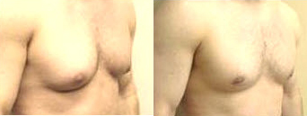 Before and After Photo: Allan Strum and his gynecomastia are no longer a problem as he has had male breast reduction surgery.