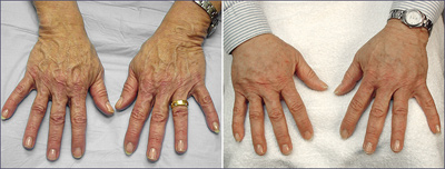 Hand Surgery Before and After