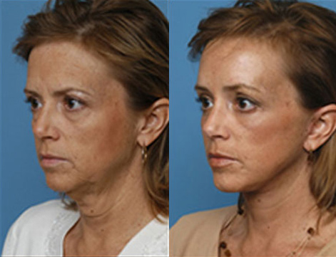 Jowl Lift Before and After Photo