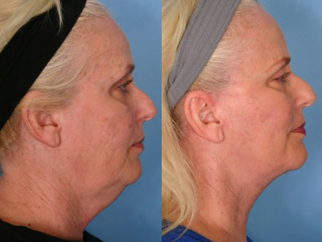 Before and After Photo: Jowl Lift #3