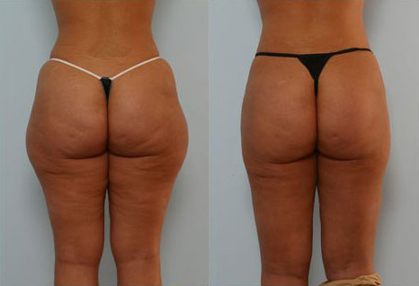 Before and After Photo: Tanisha Frisk has liposuction of the buttocks and the outer thighs with maximum results.