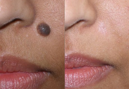 Before and After Photo: Saundra Mastronardi has a mole removed next to her nose and above her lips.