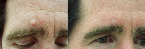 Before and After Photo: Nelson Allaire has a large mole removed above his right eyebrow. There is minimal scarring following the removal of the mole.