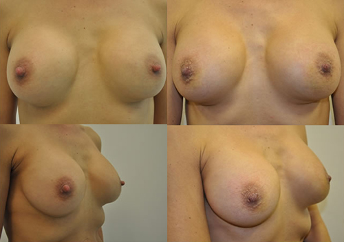 Before and After Photo: Tia Linebaugh has her nipples reduced because she's feeling insecure about the way they look.