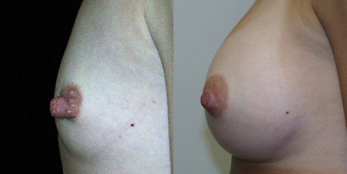 Before and After Photo: Nipple reduction and breast enlargement patient Allyson Yeldell.