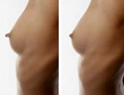 Before and After Photo: Liza Wynkoop has her nipple reduction photos taken.
