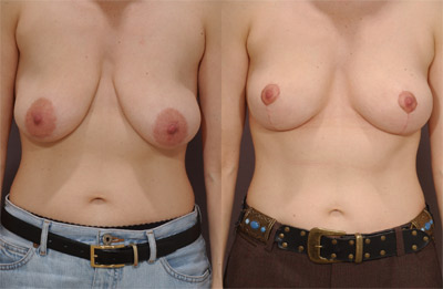 Before and After Photo - Selena Mccotter gets her areola reduction and breast lift at the same time. Photo was taken two and a half months following surgery.