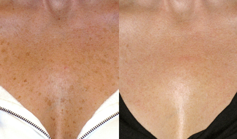 Before and After Photo: Pearl Laser #2