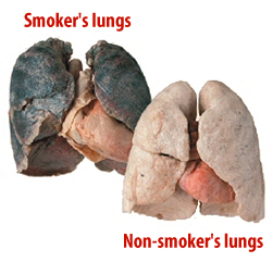 Before and After Photo: Smoker vs Non-smoker.