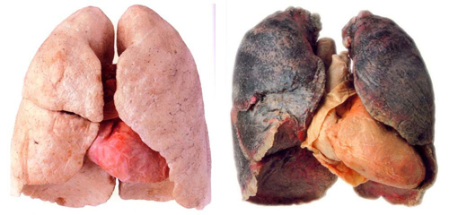 Before and After Photo: Quitting smoking. Healthy lungs vs smokers lungs.