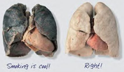 lungs before and after quitting smoking