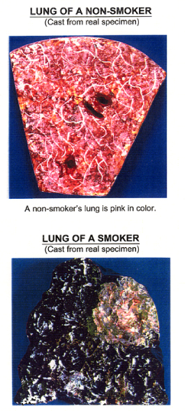 Before and After Photo: Quitting Smoking Lab Sample.
