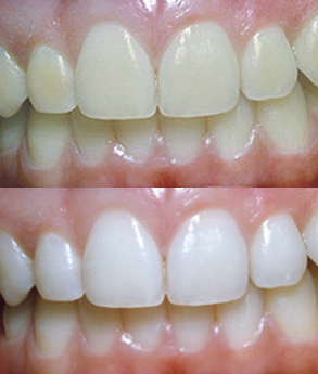 Teeth Whitening: Before and After Photo #2
