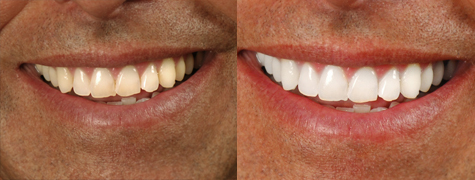 Before and After Photo: Teeth Whitening #3