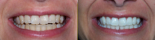 Before and After Photo: Teeth Whitening #4