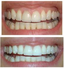Before and After: Teeth Whitening #5